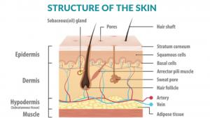 How to Improve Eczema Naturally