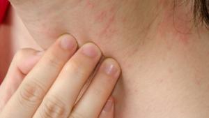 How to Improve Skin Eczema