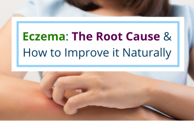 The Root Cause of Eczema and How To Improve It Naturally